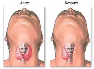 hemitiroidectomía