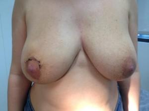 Paciente tras la cirugía de mama