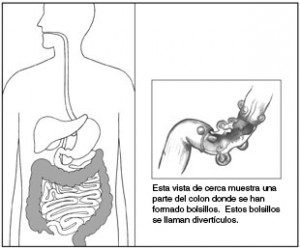 enfermedad_diverticular_del_colon