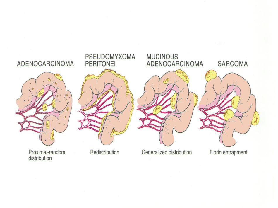 cancer peritoneal pronostico ascită mâncărime în anus