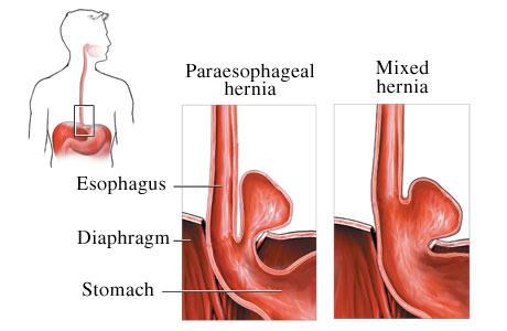 bulto en el cuadrante superior izquierdo del abdomen