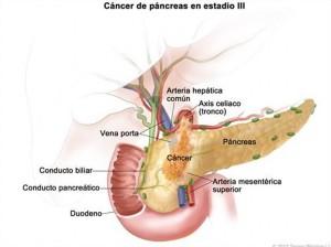 Cáncer de páncreas en estadio III