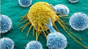 Células cancerígenas / Imagen meedicina.com