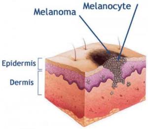 Avance del Melanoma en la dermis