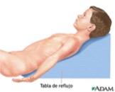 Reflejo tonico del cuello en bebes